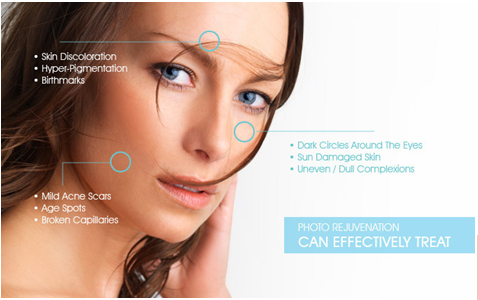 Photofacial-procedure