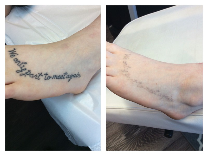 Before After Tattoo Foot Metamorphosis Clinic