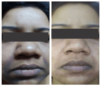 Dermapen Before After 2