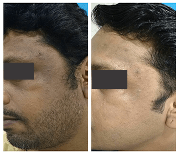 Dermapen Before After 3