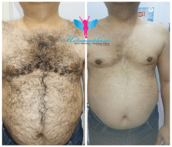 Laser Hair Removal Before After 2