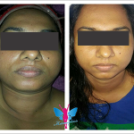 Medifacial Before After