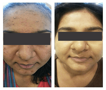 Pigmentation Before After 1