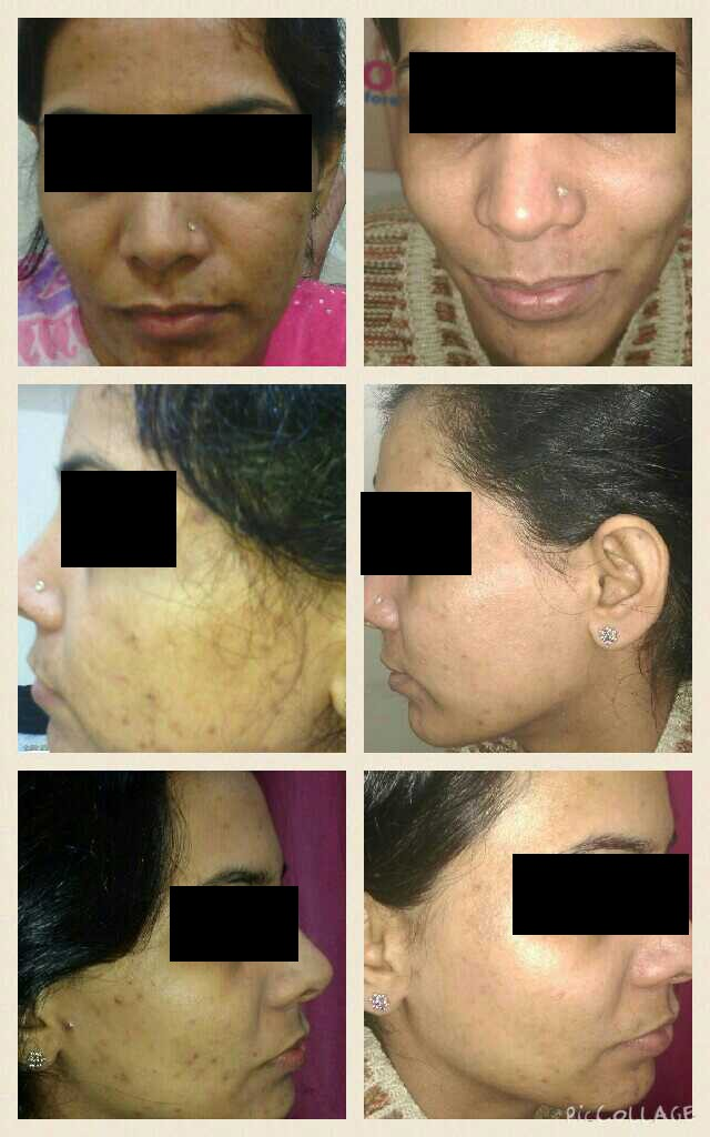 Microdermabrasion Before After
