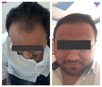 Hair Transplant Before After 2