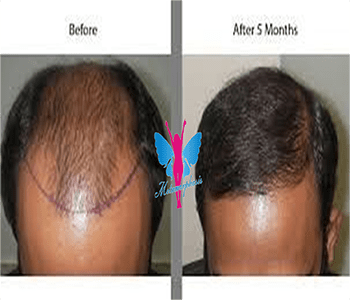 Hair Transplant Before After 6