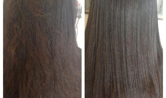 Laser Hair Regrowth Therapy – Effective Way To Prevent Your Hair Loss