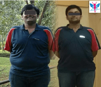 Weight Loss Before After 2