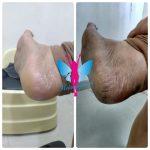 Skin rejunevation