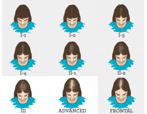 Hair Loss Pattern in Women