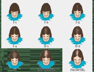 Hair Loss Pattern in Women
