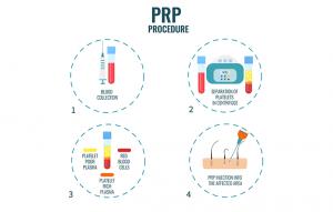Procedure of Hair PRP