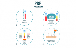 Procedure of Hair PRP