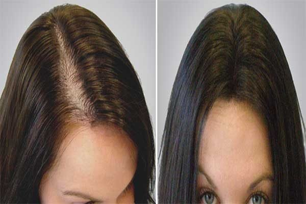 Types of latest treatments for Hair Loss
