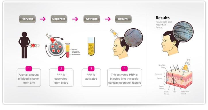 PRP Hair Treatment In Mumbai & Delhi, India - Metamorphosis