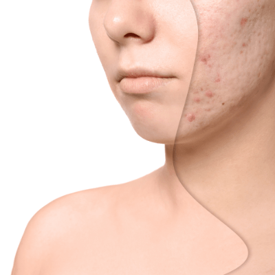 Acne pores and scars