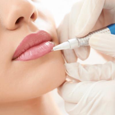 Lip Lightening Treatment