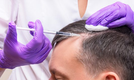 How Hair Restoration is Possible Through PRP Therapy? How does this therapy work for premature baldness?