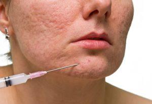 Acne Scar PRP Treatment