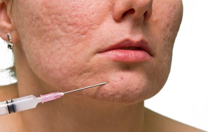 Platelet Rich Plasma (PRP) Treatment For Acne Scars