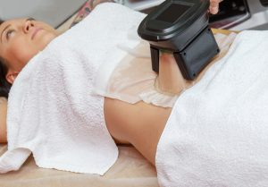patient-receiving-cryolipolysis-treatment